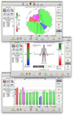 Acugraph screen shots from Dr Whittlesey and chiropractor in Novato, CA
