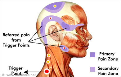 Diagram of trigger points used by Novato chiropractor james whittlesey DC